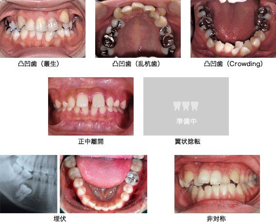 凸凹歯(叢生:そうせい、乱杭歯:らんぐいば、Crowdingと呼ばれる)、正中離開、翼状捻転、埋伏、非対称の写真